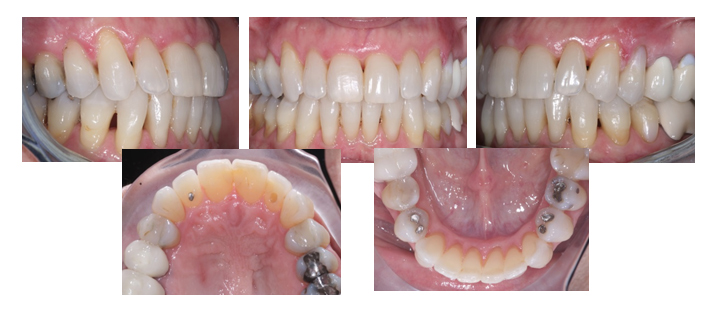 invisalign_after