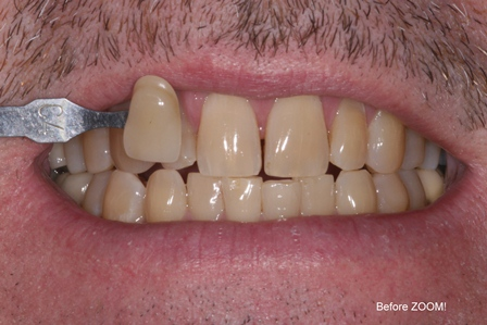 Before-Zoom-Whitening.JPG