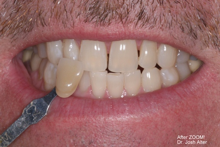 After-Zoom-Whitening.JPG